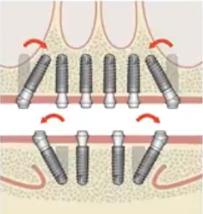 tilted-implants.png